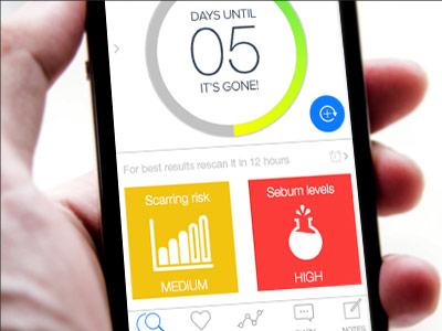 ScanZ skin analyzer and app